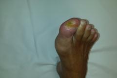 Pacient 1 | 67-letni sladkorni bolnik