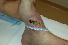 Pacient 2 | 71-letni bolnik