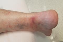 Pacient 4 | 63-letni bolnik