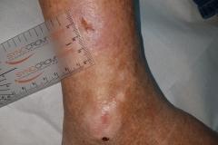 Pacient 5 | 73-letni bolnik