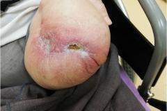 Pacient 6 | 78-letni bolnik